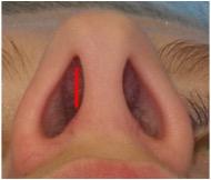 geschlossener Zugang: Schnittführung in der Nase