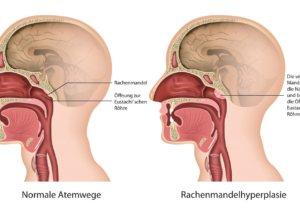 rachenmandelhyperlapsie